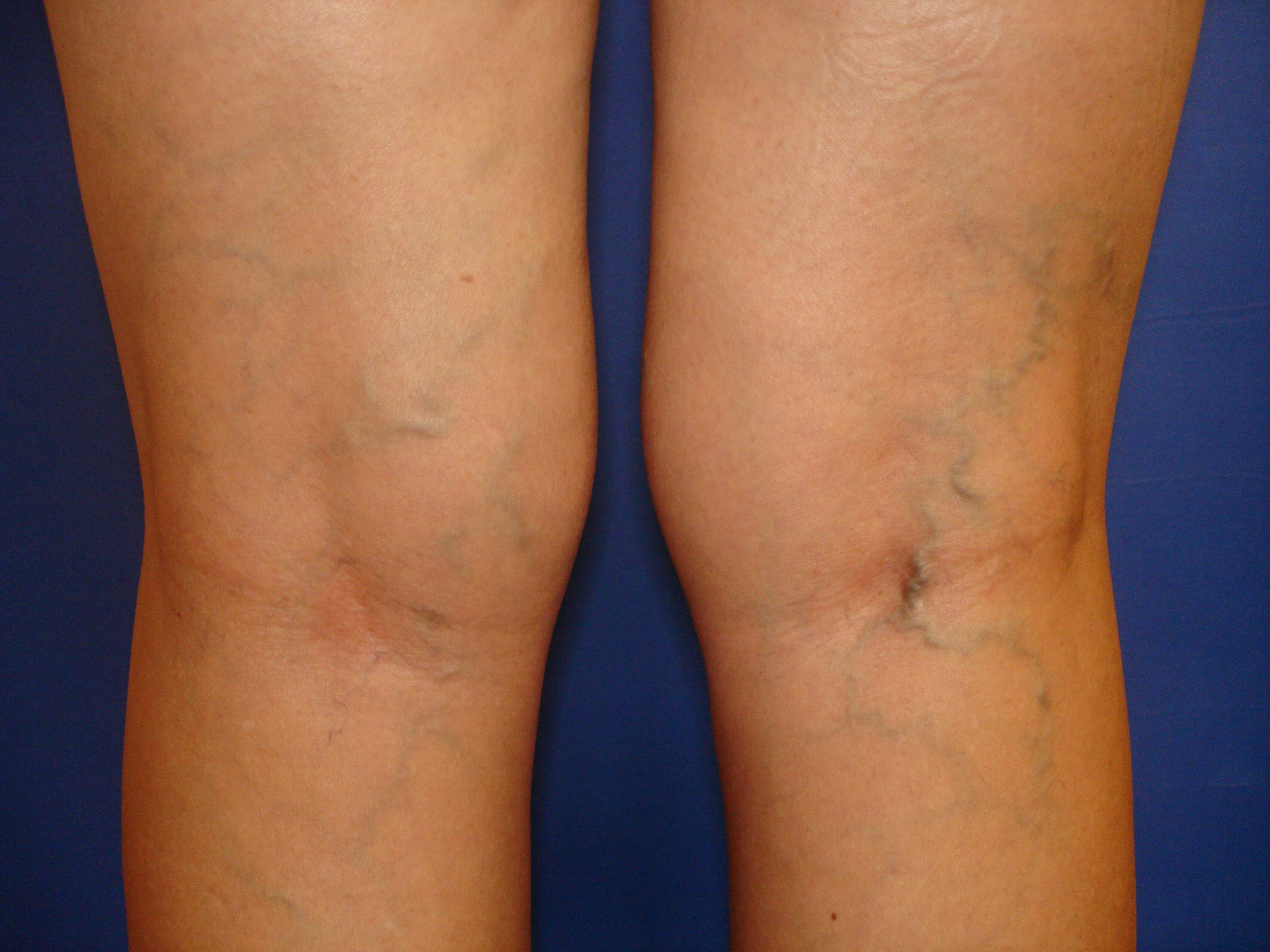 Before & After Photos - Advanced Vein Care