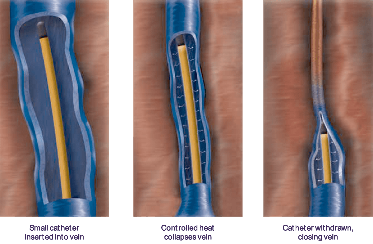 closurefast radio frequency ablation procedure